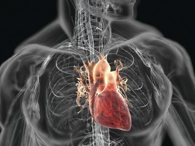 4 Silent Signs You May Have Clogged Arteries – By Joel K. Kahn, MD thumbnail